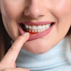 gyulladt fog fogínygyulladás dentálhigiénia