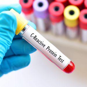 crp teszt antibiotikumok megelőzés