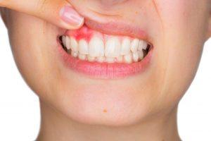 fogápolás gyulladás szájhigiénia