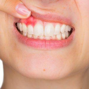 fogápolás fog gyulladás szájhigiénia