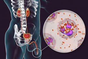 tripper kankó gonorrhea