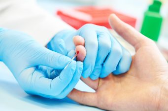 klinikai vérteszt crp-teszt
